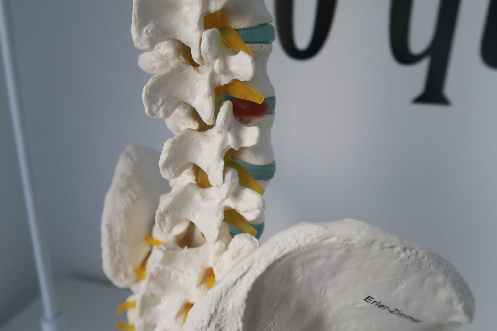 dolor de espalda y hernias