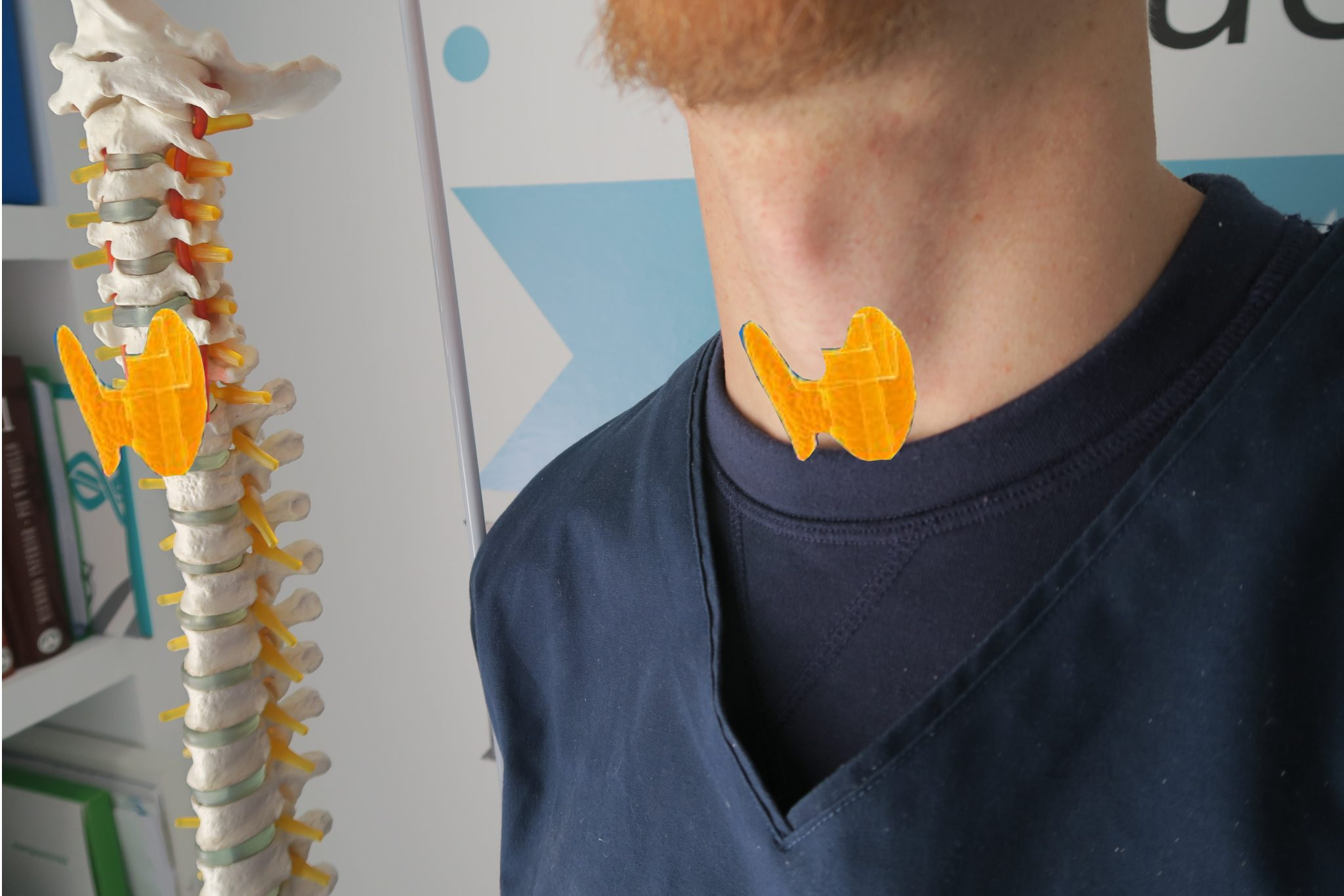 imagen tiroides