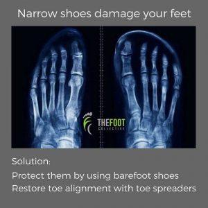 daño-zapato-pies-barefoot