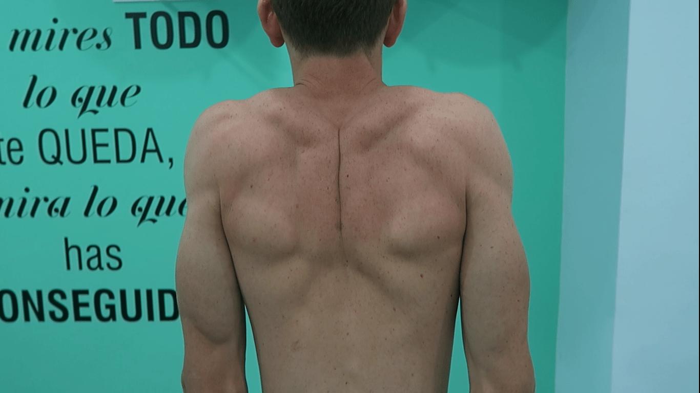 ejercicio-terapéutico-fisioterapia